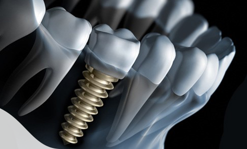 dental-implants-glasgow