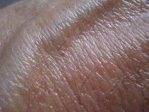 On The Surface: 3 Ways Your Skin Can Tell You Something Is Wrong