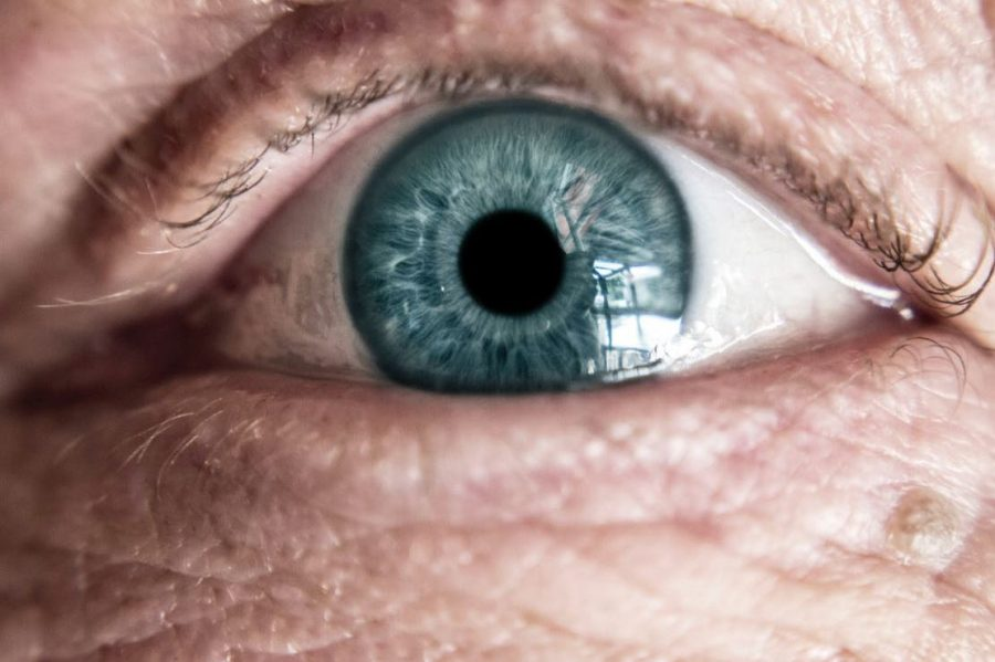 How To Prepare For LASIK Eye Surgery