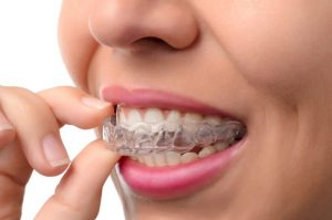 Looking For A Better Smile? How Invisalign Can Help