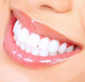 Cosmetic Dentistry: 5 Things You Should Know Before Whitening Your Teeth
