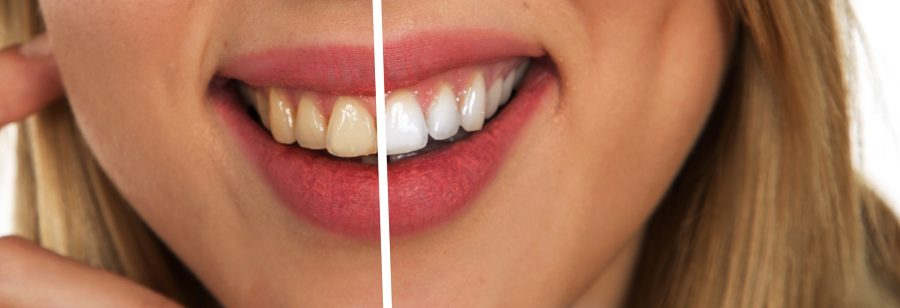 3 Fascinating Modern Methods Dentists Use to Fix Your Teeth