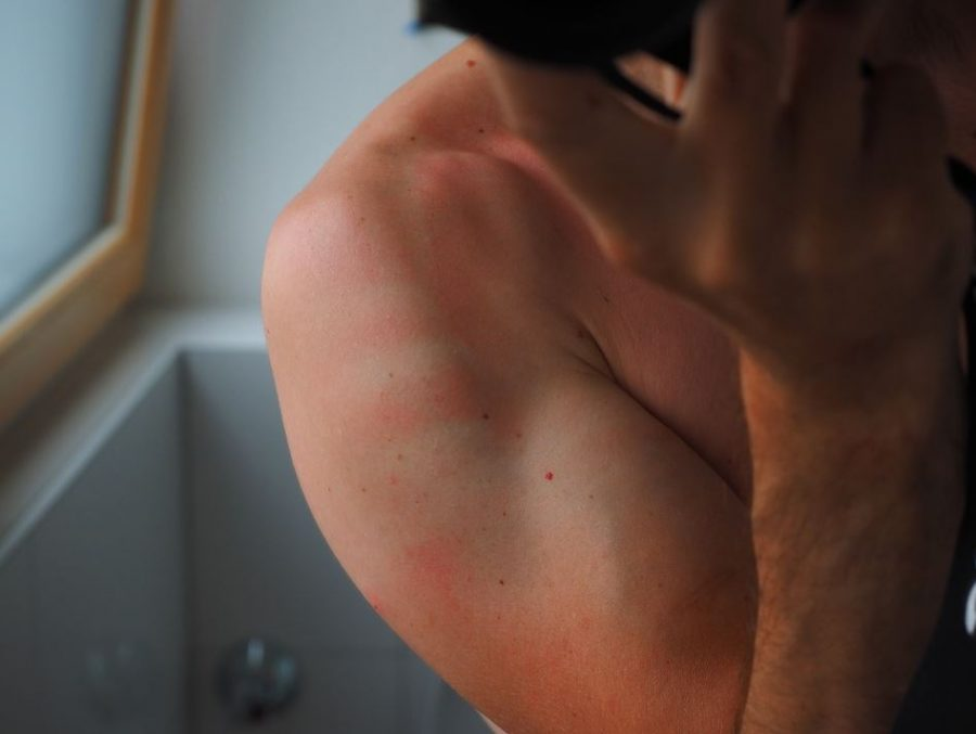 The Effect Of Temperature On Skin Health